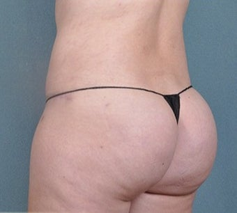 36 year old woman treated with Brazilian Butt Lift after 2630877
