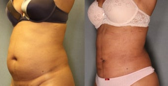 36 year old woman treated with Smart Lipo Laser Liposuction
