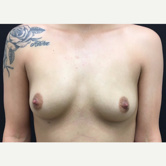 25-34 year old woman treated with Breast Augmentation before 3182228