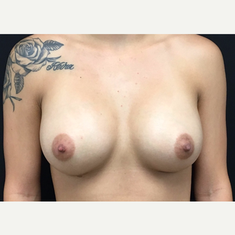 25-34 year old woman treated with Breast Augmentation after 3182228