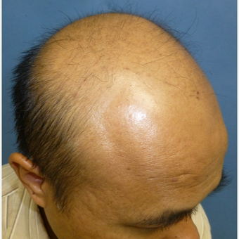 35-44 year old man treated with Hair Transplant before 3300885