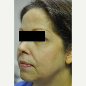 55-64 year old woman treated with TriPollar
