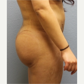 18-24 year old woman treated with Fat Transfer after 3423984
