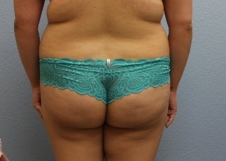 18-24 year old woman treated with Fat Transfer 3423984