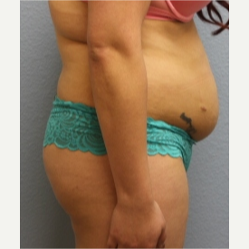 18-24 year old woman treated with Fat Transfer before 3423984
