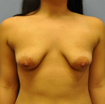 Breast Augmentation, Breast Implants, Mastopexy, Breast Lift before 1206851