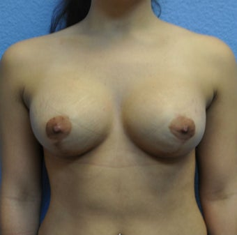 Breast Augmentation, Breast Implants, Mastopexy, Breast Lift after 1206851