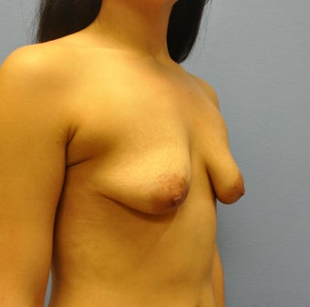 Breast Augmentation, Breast Implants, Mastopexy, Breast Lift 1206851