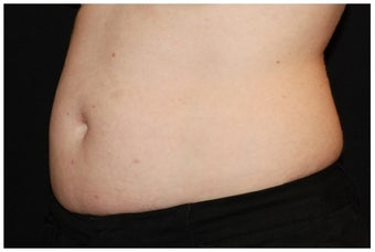 CoolSculpting before 1038765