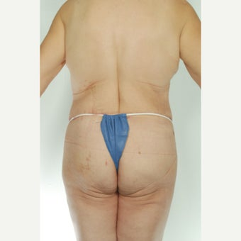 52 year old woman treated with Body Lift 1661511
