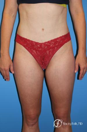 45-54 year old woman treated with Tummy Tuck 2929966