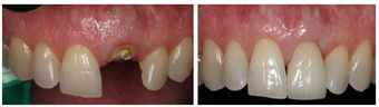 Single Tooth Dental Implant  before 1008330