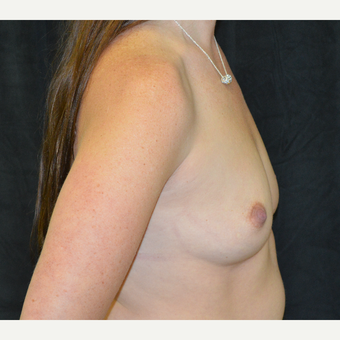 35-44 year old woman treated with Breast Implants before 3181863