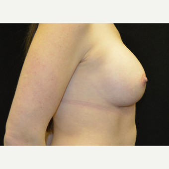 35-44 year old woman treated with Breast Implants after 3181863