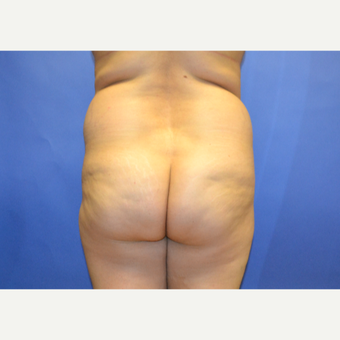 25-34 year old woman treated with Brazilian Butt Lift before 2999173