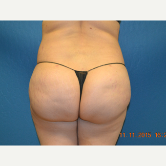 25-34 year old woman treated with Brazilian Butt Lift after 2999173
