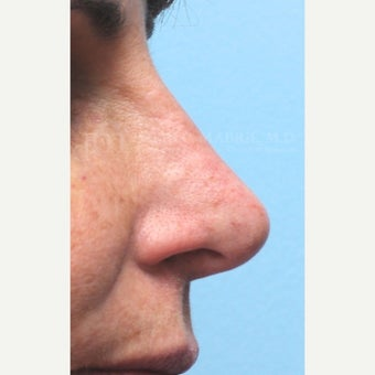 Woman treated with Non-Surgical Revision Rhinoplasty after 1843229