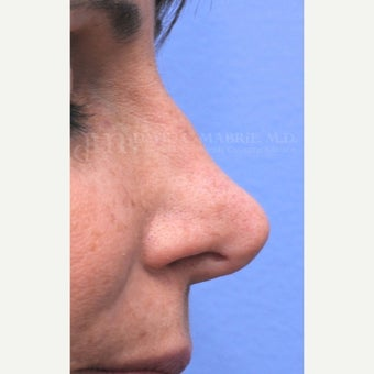 Woman treated with Non-Surgical Revision Rhinoplasty before 1843229