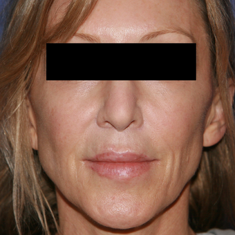 54 year old woman treated with Lip Lift after 3710922