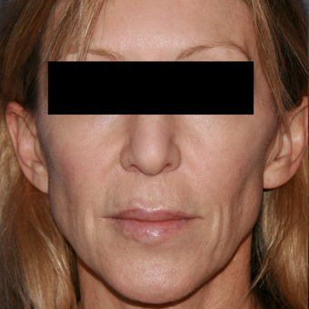 54 year old woman treated with Lip Lift before 3710922