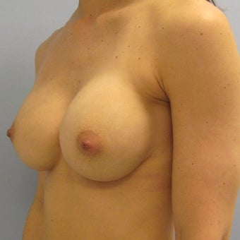 25-34 year old woman treated with Breast Implant Revision 1814173