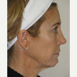 45-54 year old woman treated with Ultherapy and Fillers before 3141693