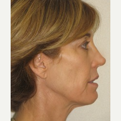 45-54 year old woman treated with Ultherapy and Fillers after 3141693