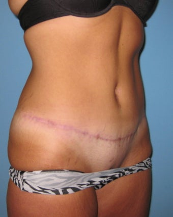 Tummy tuck for extra abdominal skin 685664