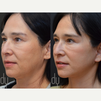 Facelift, Upper Blepharoplasty before 3100708