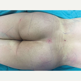18-24 year old woman treated with Butt Lift after 3212278