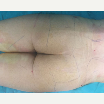 18-24 year old woman treated with Butt Lift before 3212278