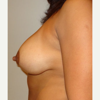 45-54 year old woman treated with Breast Lift after 3203350