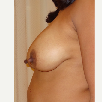 45-54 year old woman treated with Breast Lift before 3203350
