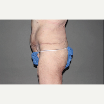 55-64 year old woman treated with Panniculectomy after 1957287