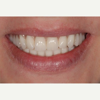 45-54 year old woman treated with All-on-4 Dental Implants after 2257120