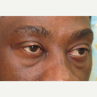 45-54 year old man treated with Eyelid Surgery before 3420658