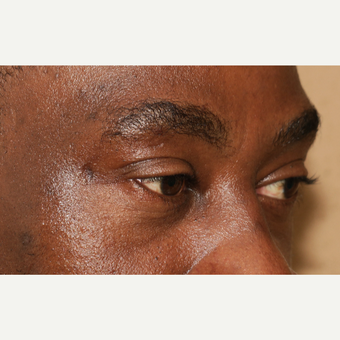 45-54 year old man treated with Eyelid Surgery after 3420658