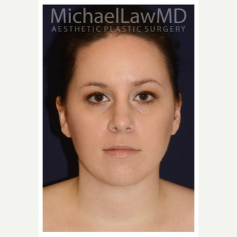 25-34 year old woman treated with Lower Face Lift after 3383287