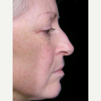 49 year old woman treated with Rhinoplasty before 3839756