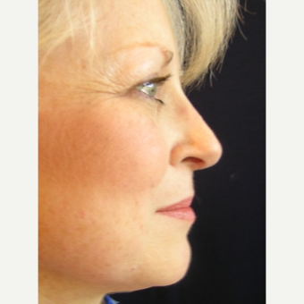 49 year old woman treated with Rhinoplasty after 3839756