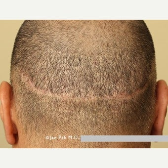 45-54 year old man treated with Scalp Micropigmentation plus Hair Transplant FUE before 2006931