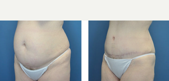 25-34 year old woman treated with Tummy Tuck before 3776567