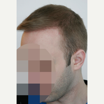 25-34 year old man treated with FUE Hair Transplant after 3656602