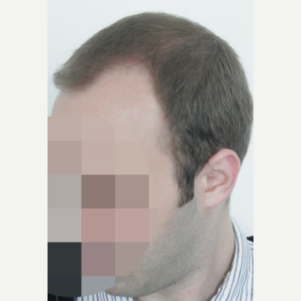 25-34 year old man treated with FUE Hair Transplant before 3656602