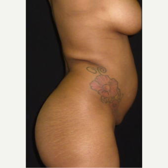 25-34 year old woman treated with Liposuction before 3372398