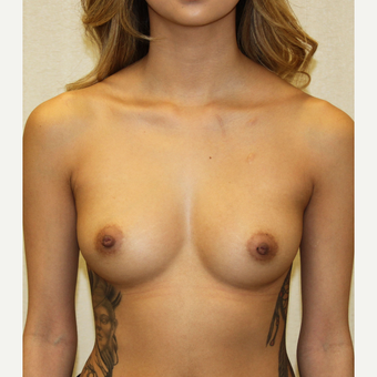 18-24 year old woman treated with Breast Augmentation before 3684846