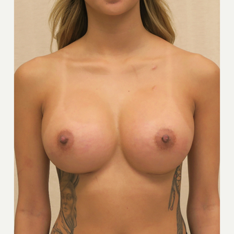 18-24 year old woman treated with Breast Augmentation after 3684846