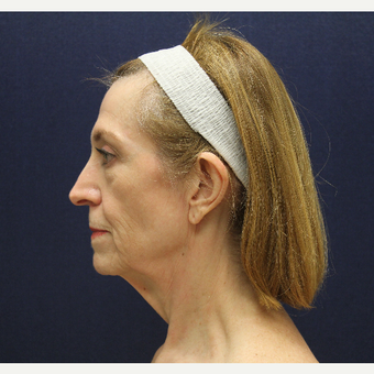 55-64 year old woman treated with Facelift and Blepharoplasty before 3147306