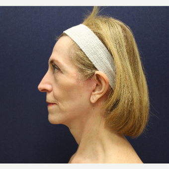 55-64 year old woman treated with Facelift and Blepharoplasty after 3147306