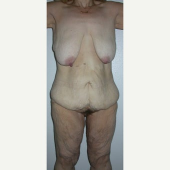 55-64 year old woman with Body Lift before 1970542